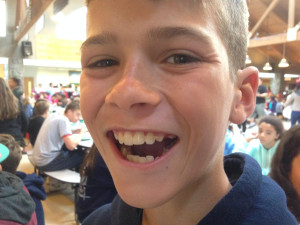 Brock S Lost a Tooth!